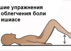 Ишиас и упражнения