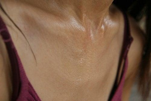 Чрезмерное потоотделение: атипичные симптомы инфаркта у женщин