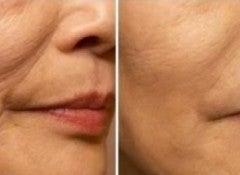 Морщинки вокруг рта
