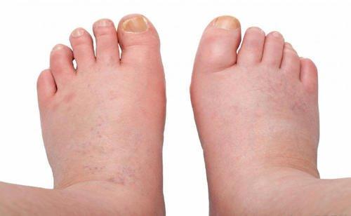 6 домашних средств, которые помогут снять отеки ног
