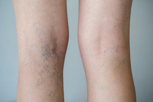 Кровообращение в ногах