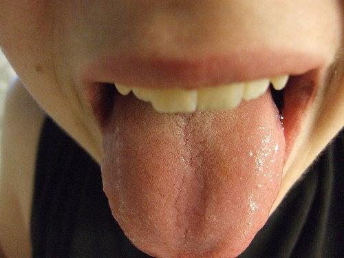 Что внешний вид языка может сказать о здоровье?
