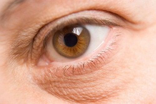 Клубника уменьшает круги под глазами