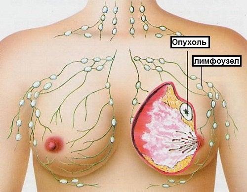 Рак у женщин