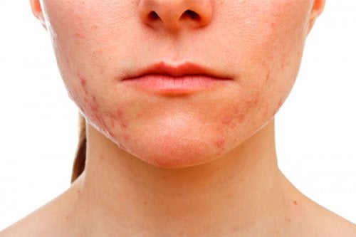 Стресс сильно влияет на кожу