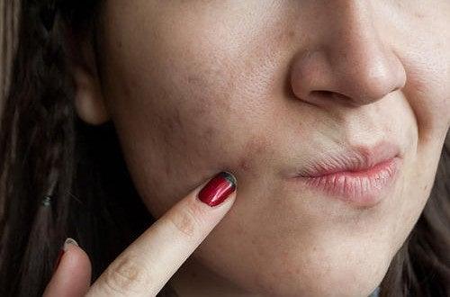Проблемная кожа: 8 продуктов против несовершенств