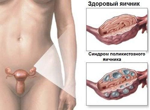 Синдром поликистозных яичников: натуральные лечебные средства