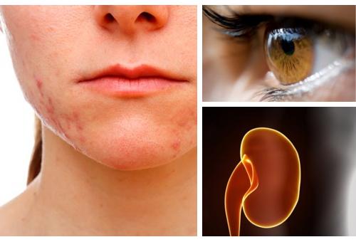 Стресс влияет на кожу, зрение и почки