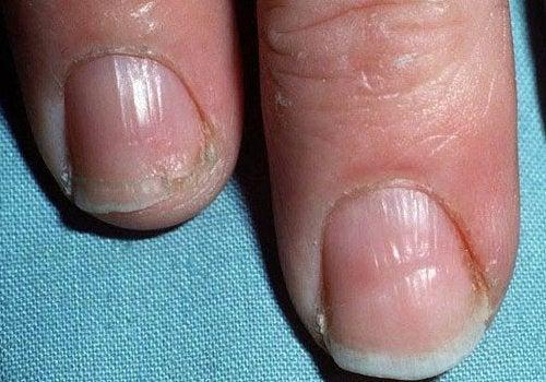 Больные Ногти
