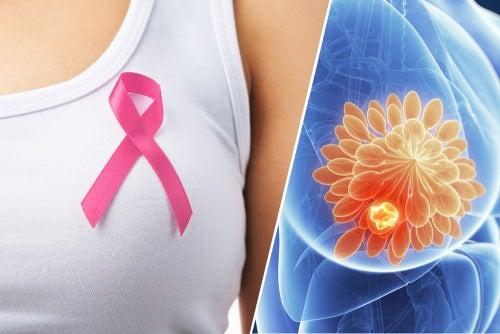 Карцинома молочной железы: 10 основных симптомов