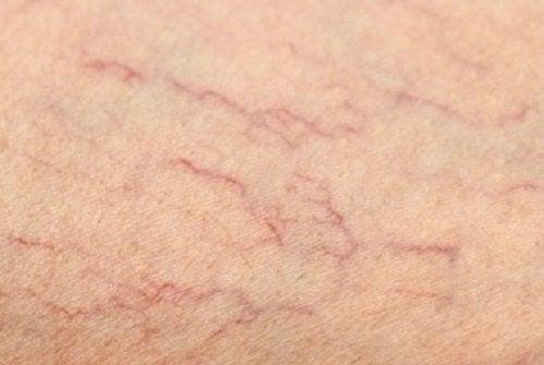 Сосудистые звездочки на ногах: как лечить варикоз