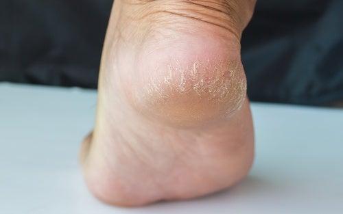 Гладкие пятки: как вернуть коже нежность за несколько дней