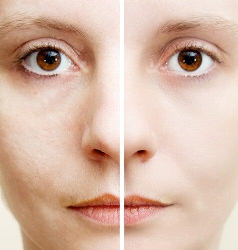 5 натуральных ингредиентов, которые помогут убрать темные пятна на коже