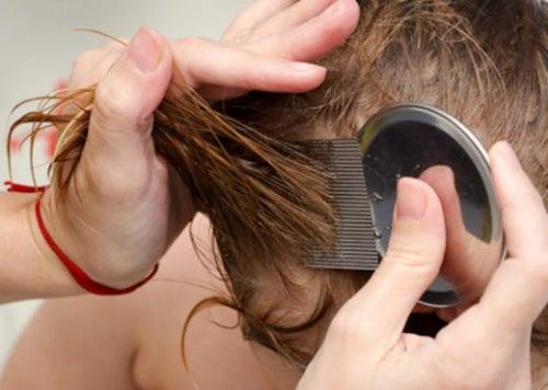 6 натуральных средств для избавления от вшей и гнид