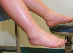Задержка жидкости в ногах