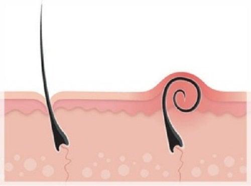 Вросшие волосы после депиляции: что делать?