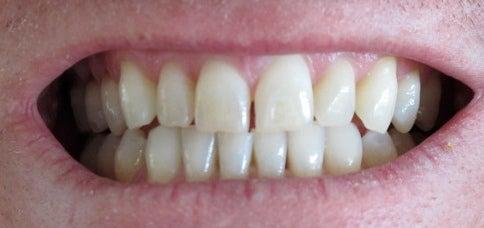 Зубы и бруксизм