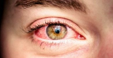 Покрасневшие глаза. Здоровье глаз