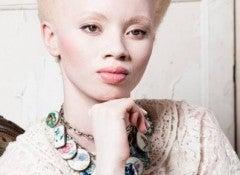 Тандо Хопа и альбинизм