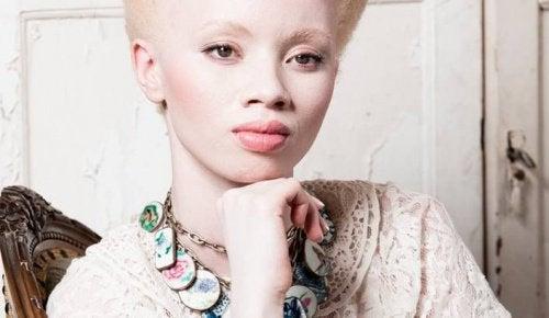 Альбинизм: трогательная история модели Тандо Хопа