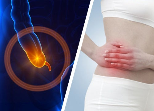 Воспаление аппендикса: в чем причина и что делать для его профилактики?