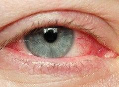 Раздраженные глаза