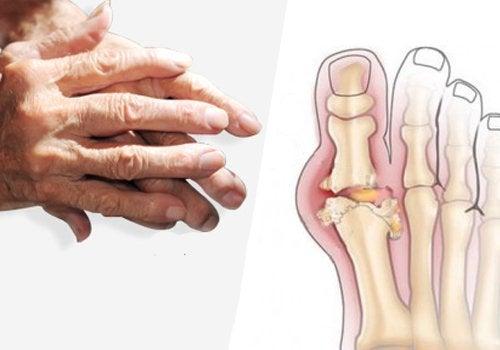 Овсянка снимает боль при артрите