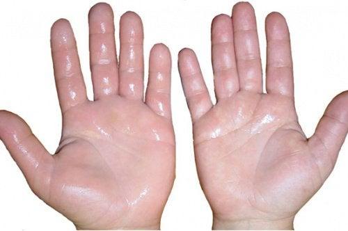 Раздражение кожи рук