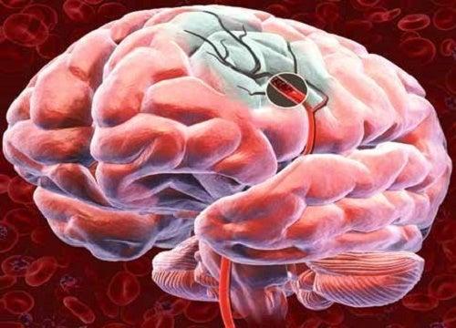 5 советов для улучшения кровоснабжения головного мозга