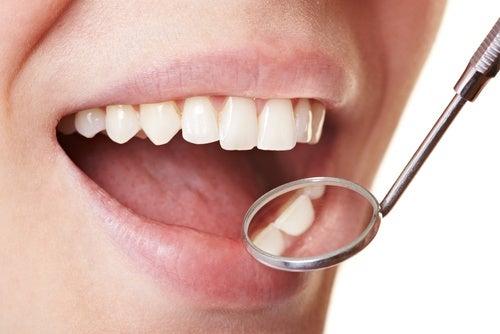 Как легко удалить зубной налет в домашних условиях?