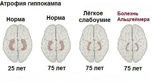 Болезнь Альцгеймера: 10 основных симптомов
