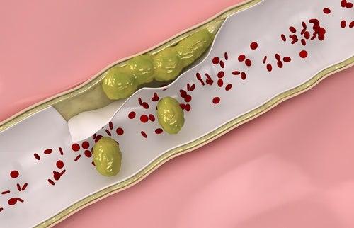 Чистить артерии