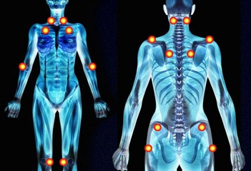 Фибромиалгия и боль в руках и ногах