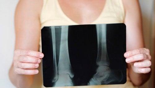 Как сохранить кости здоровыми в период менопаузы?