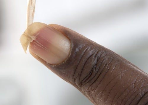 Как укрепить ломкие ногти: домашние рецепты