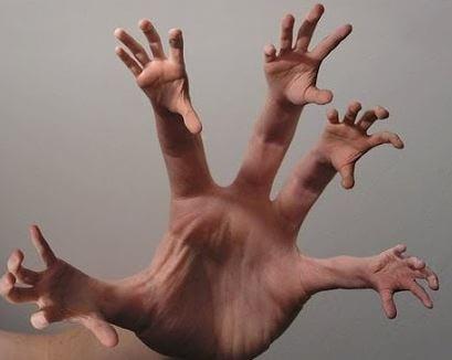 Синдром чужой руки и другие психические расстройства