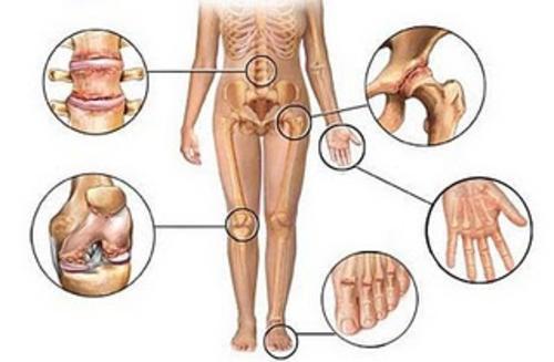 Суставы и боль в руках и ногах