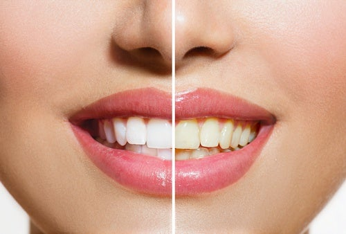 Более белые зубы и кожура банана