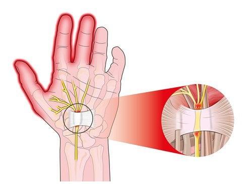 Синдром запястного канала симптомы и лечение в домашних условиях как лечить упражнения