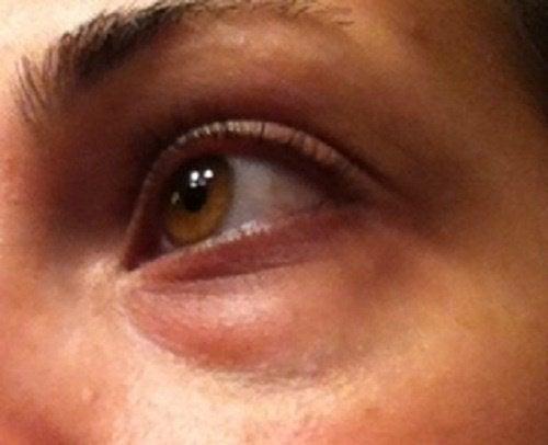 Синяки под глазами: как убрать их при помощи натуральных средств