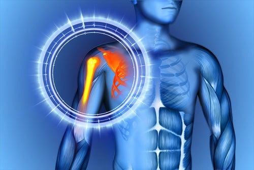Как натуральными средствами уменьшить боль в костях