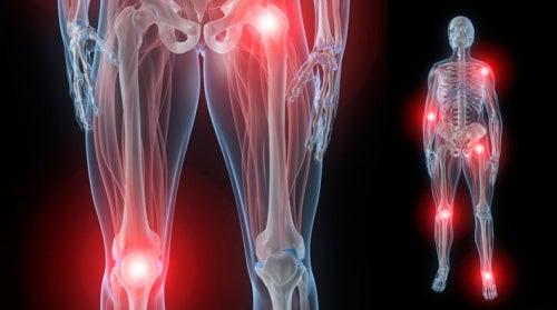 Боль в суставах и фибромиалгия