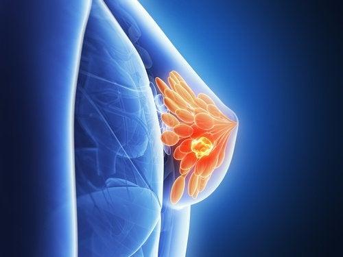 Рак молочных желез: 7 мифов об этом заболевании