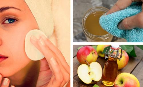 Яблочный уксус для ухода за кожей лица: избавьтесь от несовершенств!