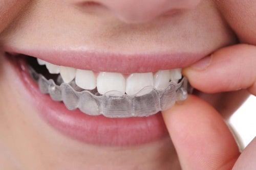 Скрежет зубами во сне (бруксизм), как справиться с проблемой?