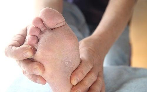 """Микоз или """"стопа атлета"""": лечим натуральными средствами!"""