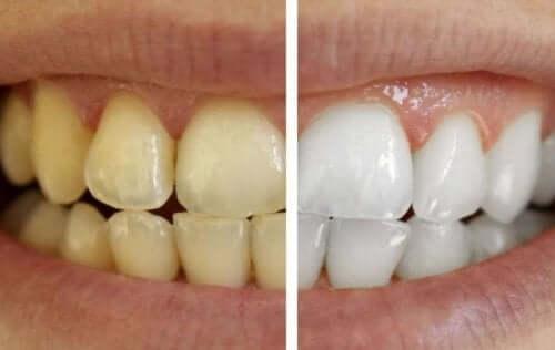 Ухаживайте за зубами с использованием 100% натуральных средств
