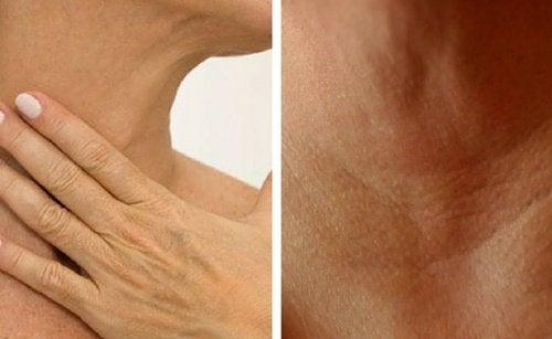 4 средства которые помогут предотвратить морщины на руках и шее