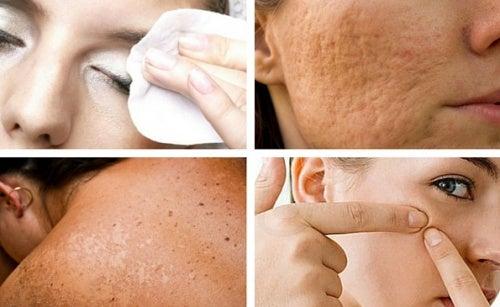 Здоровая кожа лица: 7 привычек, которых лучше избегать