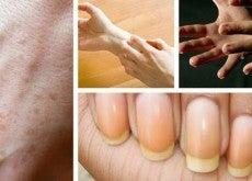 Что могут руки сказать о нашем здоровье